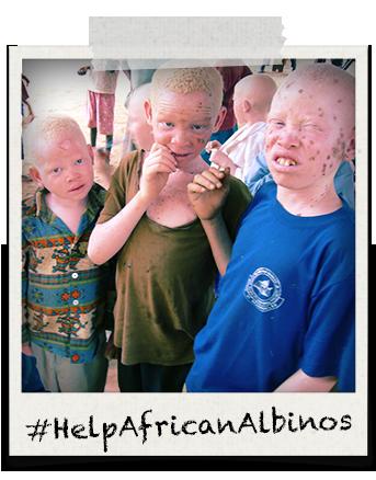 bambini-albinismo-mockup